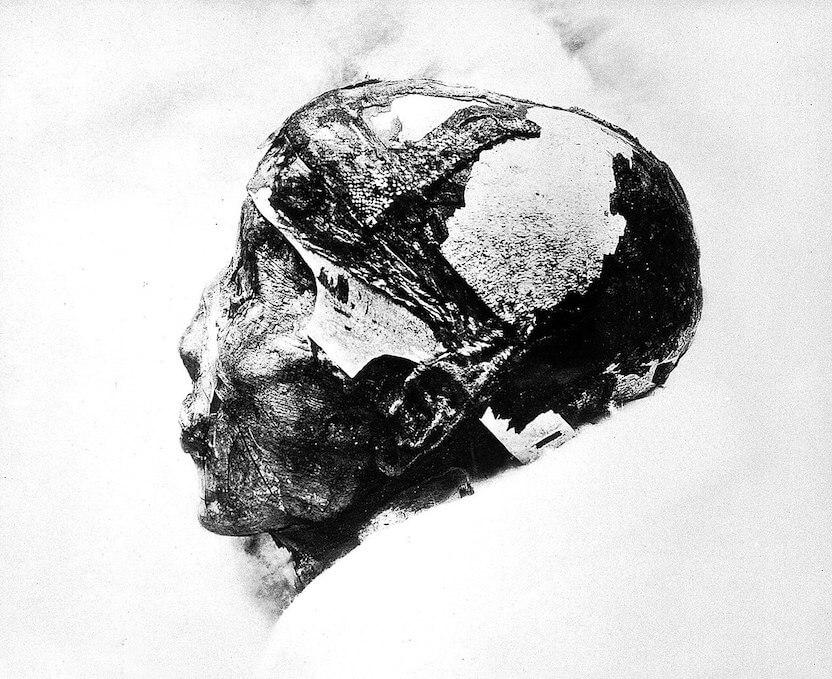 ツタンカーメンのミイラの頭部